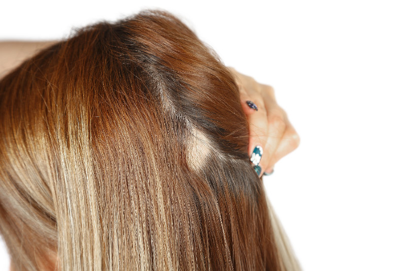 Stress and hair loss bald patches on woman's scalp