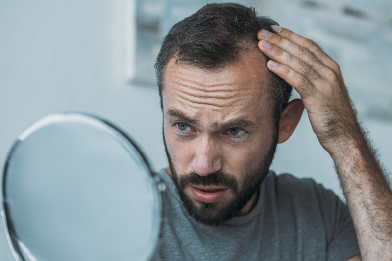 Stress and hair loss man looking at hair in mirror