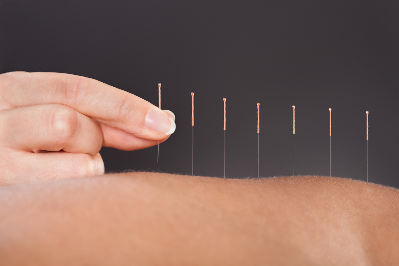 Acupuncture for menopause