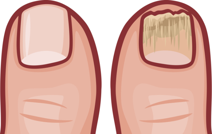 Illustration showing a fungal nail compared to a normal healthy nail (Thinkstock/PA)
