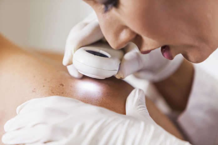 Female dermatologist xamining male patient's skin with dermascope,