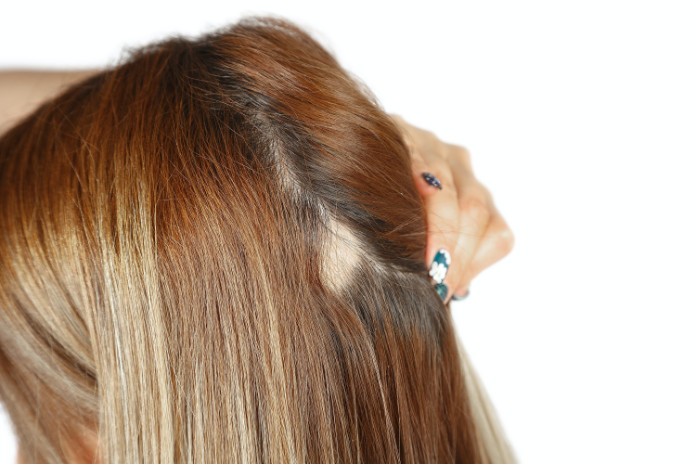 Alopecia areata causes 'patchy' bald spots