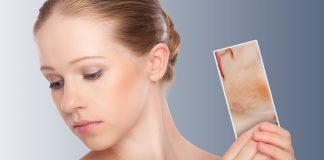 early Lupus symptoms