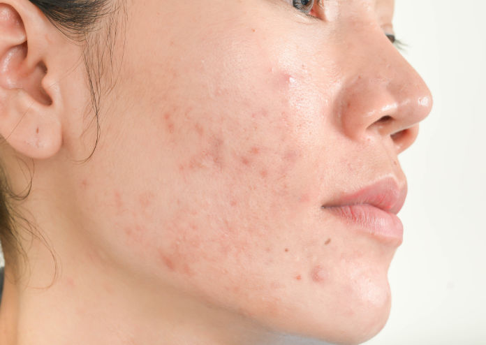 acne on woman