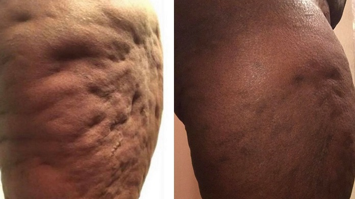 cellulite treatment at home