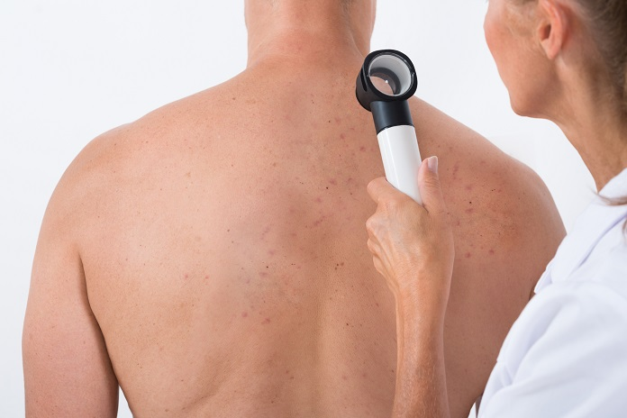 early signs of skin cancer