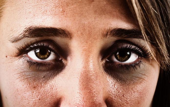 Dark shadows under a woman's eyes