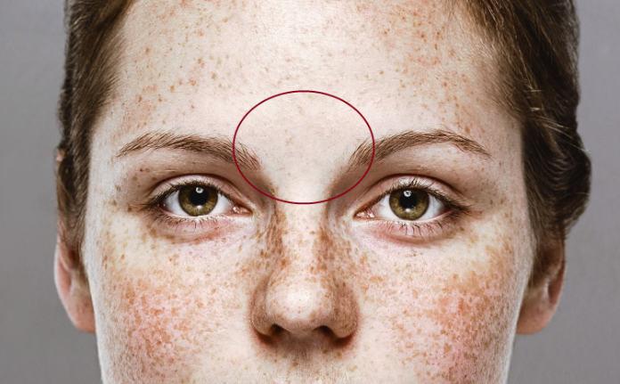 Skin mapping zone 2