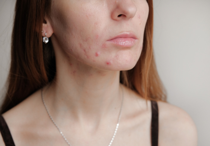 Teen acne on young skin.