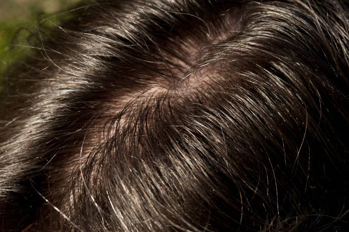 Shiny and oily human hairline and scalp