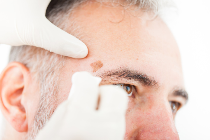 Chryotherapy used to Removed an Aged Spot on Patient Face