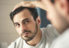 What are the reasons for thinning hair