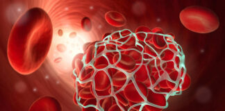 Should you be worried about blood clots?