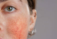 What is rosacea – woman with rosacea on her cheeks.